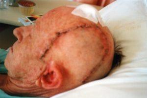 Midge underwent craniotomy for a bleed on the brain